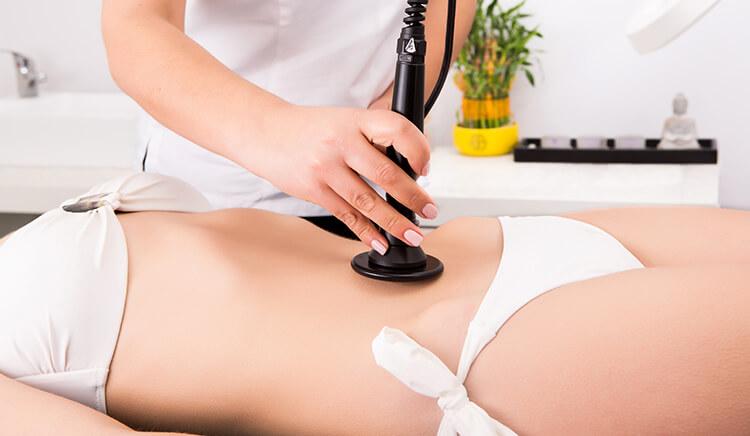 laser terapia per eliminare le smagliature dopo la gravidanza