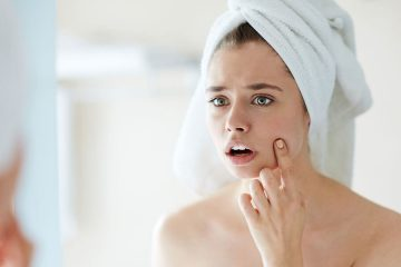 migliori-rimedi-per-eliminare-acne-e-cicatrici